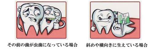 その前の歯が虫歯になっている場合 斜めや横向きに生えている場合